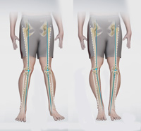 Knee Angular Deformities