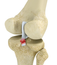 PCL Injuries Katy   Cartilage and Ligament Injuries Cypress
