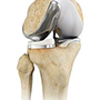 Unicompartmental Knee Replacemen