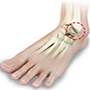 Arthritis - Foot & Ankle