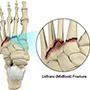 Lisfranc (midfoot) injuries