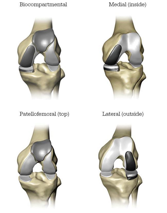 Partial Knee Replacement >> Mako Robotic Partial Knee Replacement Katy Partial Knee